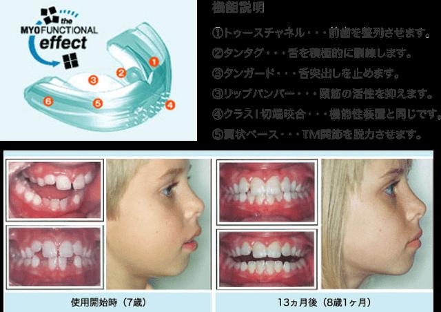口腔周囲筋訓練装置